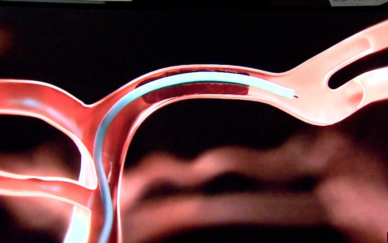 USP retira coágulo de artéria no cérebro e devolve movimentos a vítimas de AVC