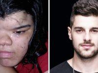 DJ Alok doa R$ 30 mil para jovem realizar cirurgia reparadora no rosto