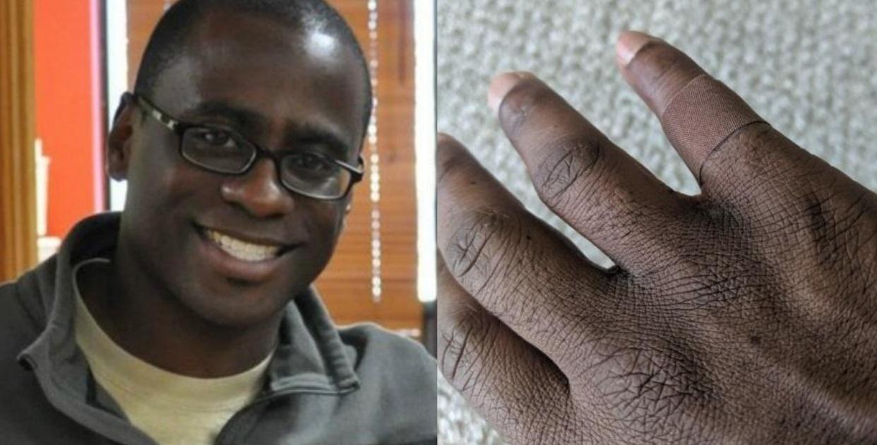 Homem chora ao encontrar curativo com o seu tom de pele: