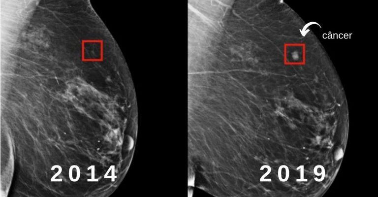 Inteligência artificial consegue prever o câncer de mama cinco anos antes
