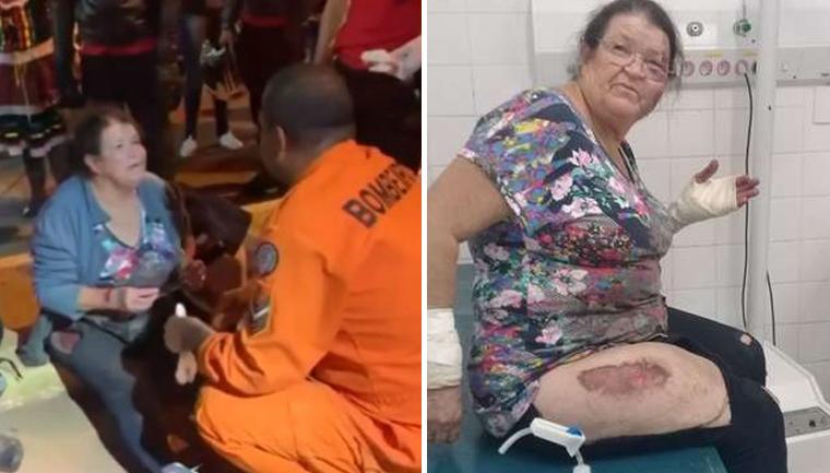 Internautas fazem vaquinha para custear despesas de idosa arrastada por carro em Taguatinga (DF)