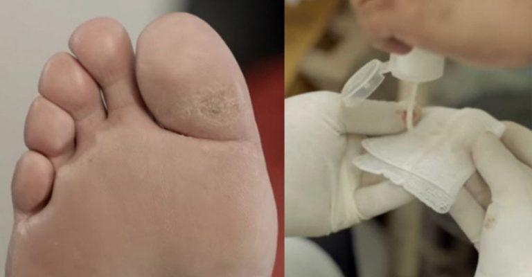 Hidrogel de gengibre criado por pesquisador brasileiro evita amputação em diabéticos
