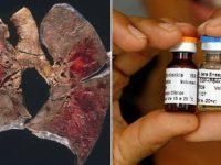 Cuba desenvolve primeira vacina contra o câncer de pulmão