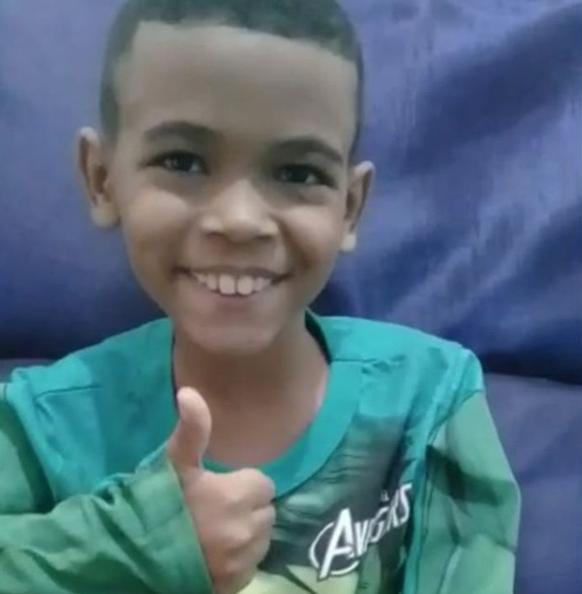 pai faz corte cabelo imitar cicatriz cirurgia filho
