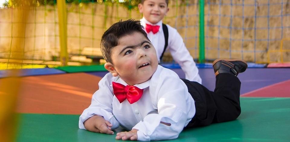 Bebê com síndrome rara que não fala e não anda transforma vida de sua família 1