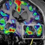 Pesquisadores testam primeira vacina contra o mal de Alzheimer