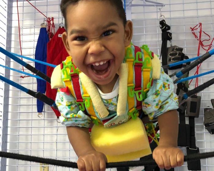 criança microcefalia sorrindo