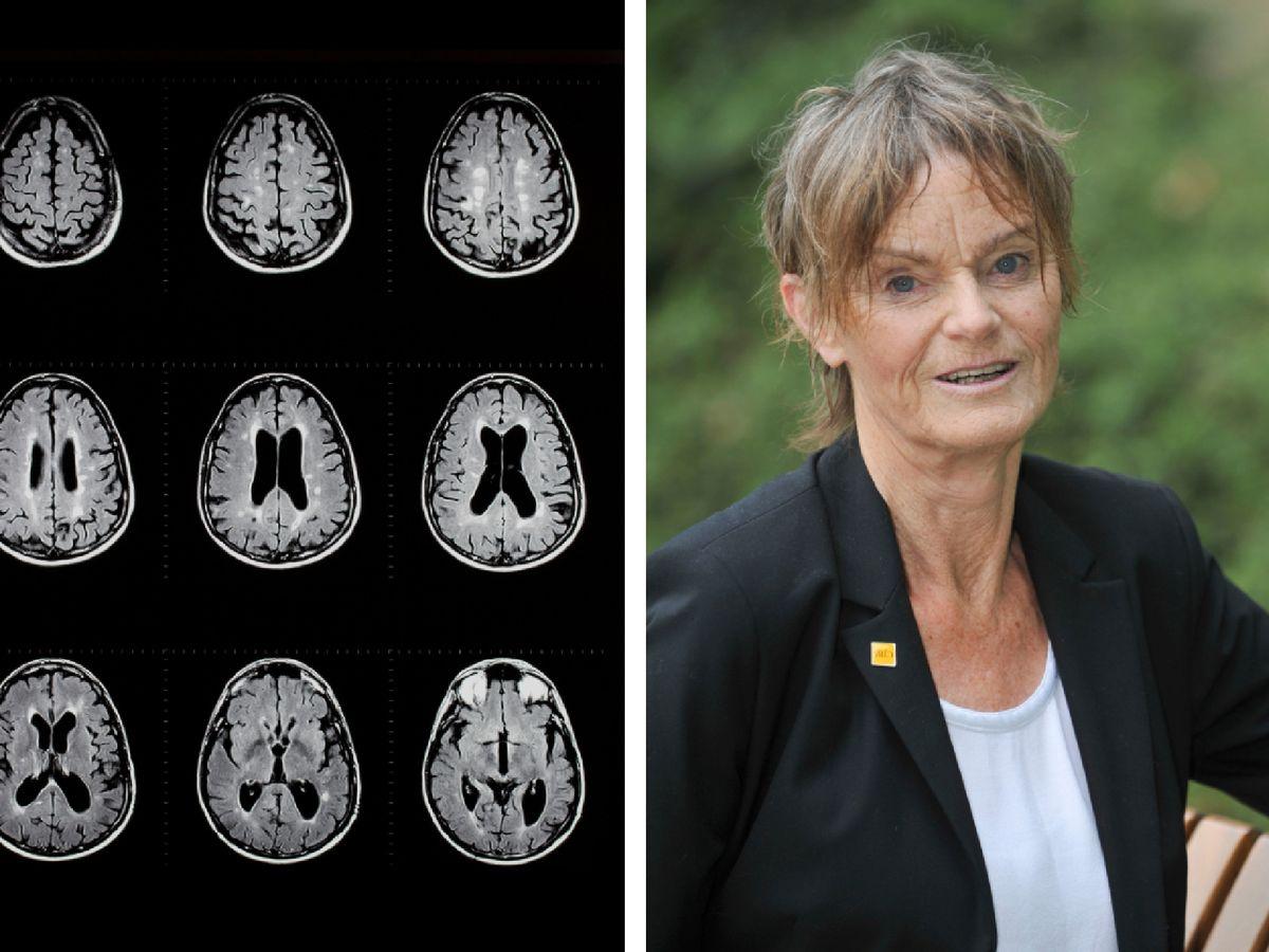 cientista e imagem de estudo para cura esclerose