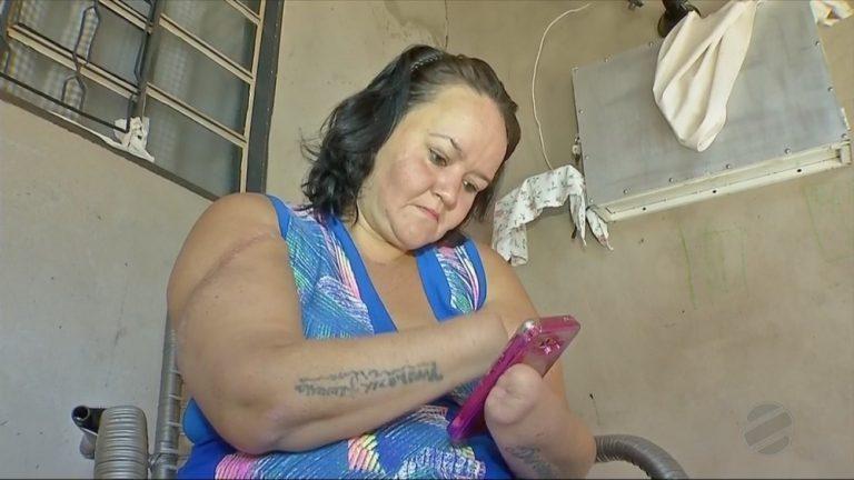 mulher mãos decepadas mexendo celular