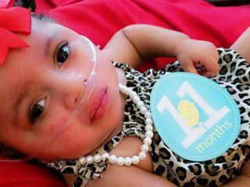 bebê com doença rara sobrevive parada cardíaca completa um ano idade