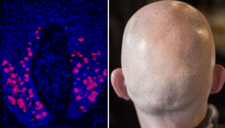 Cientistas descobrem tratamento que evita perda de cabelo causada pela quimioterapia 1
