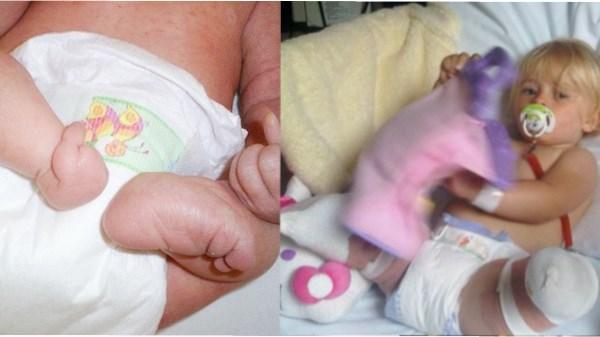 bebê malformação pernas