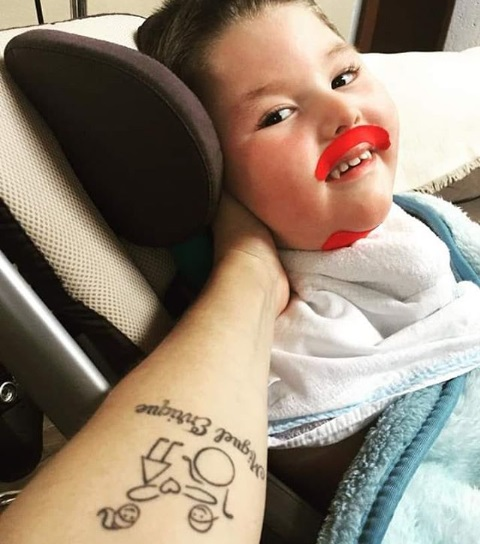 selfie menino doença rara