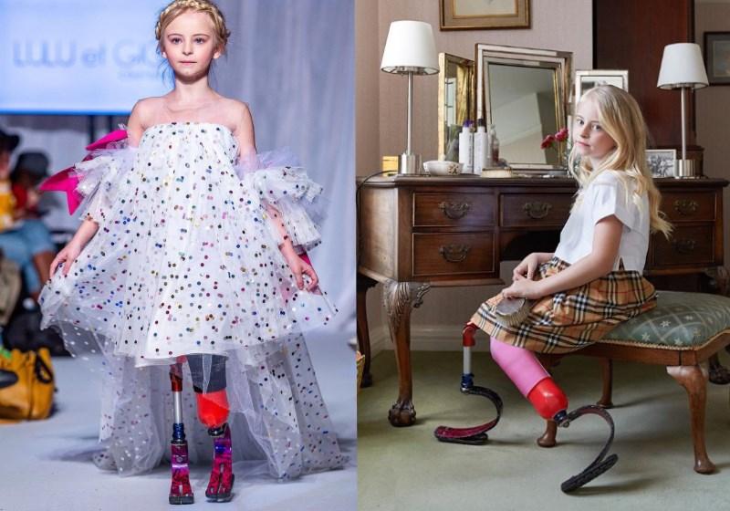 menina modelo próteses pernas