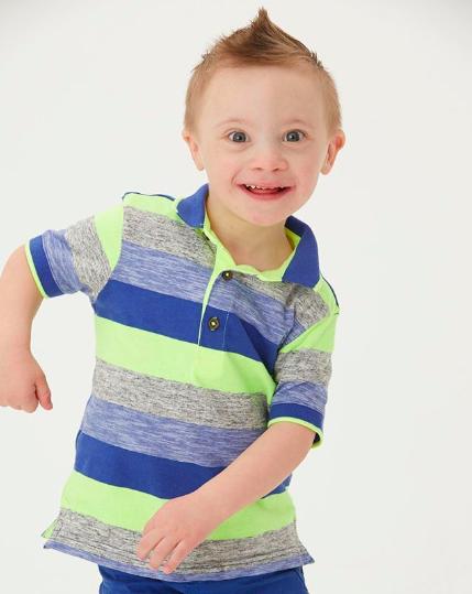 Modelo com síndrome de Down sorriso fofo