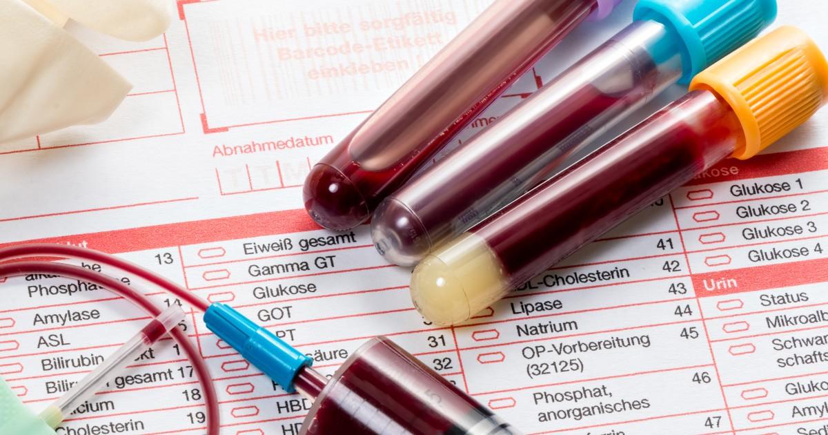 Novo exame de sangue detecta até 20 tipos de câncer com 99,4% de precisão 1