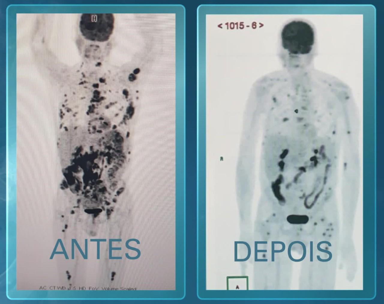 tratamento brasileiro contra o câncer