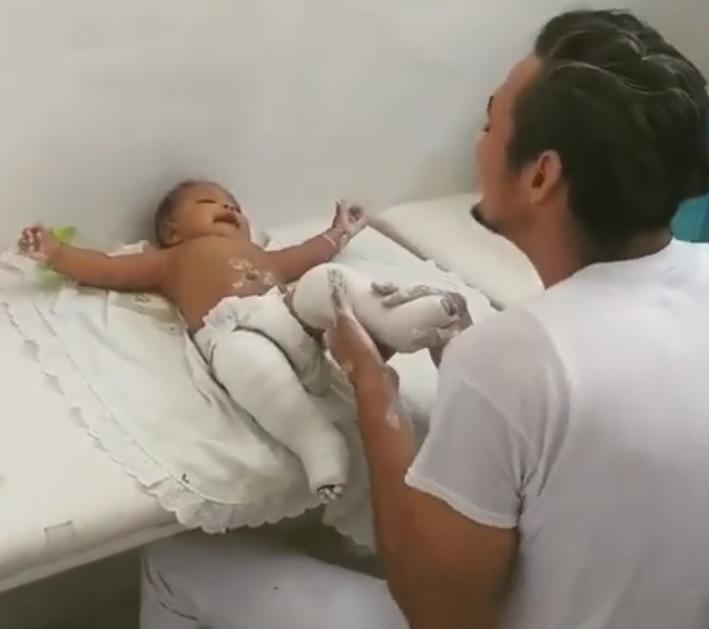 Técnico ortopedista canta distrair bebê gesso perna