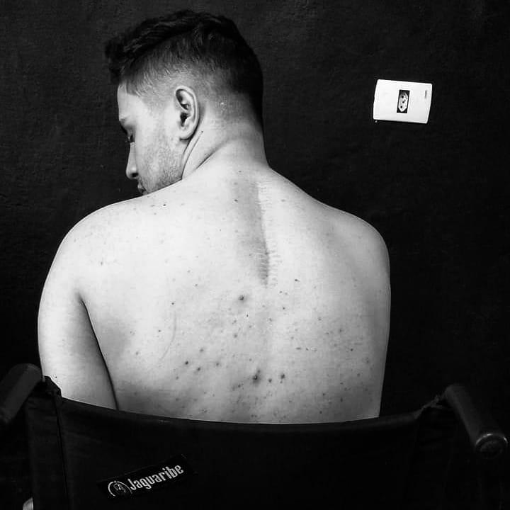 Gay e deficiente: jovem relata superação após acidente e como se redescobriu sexualmente 1