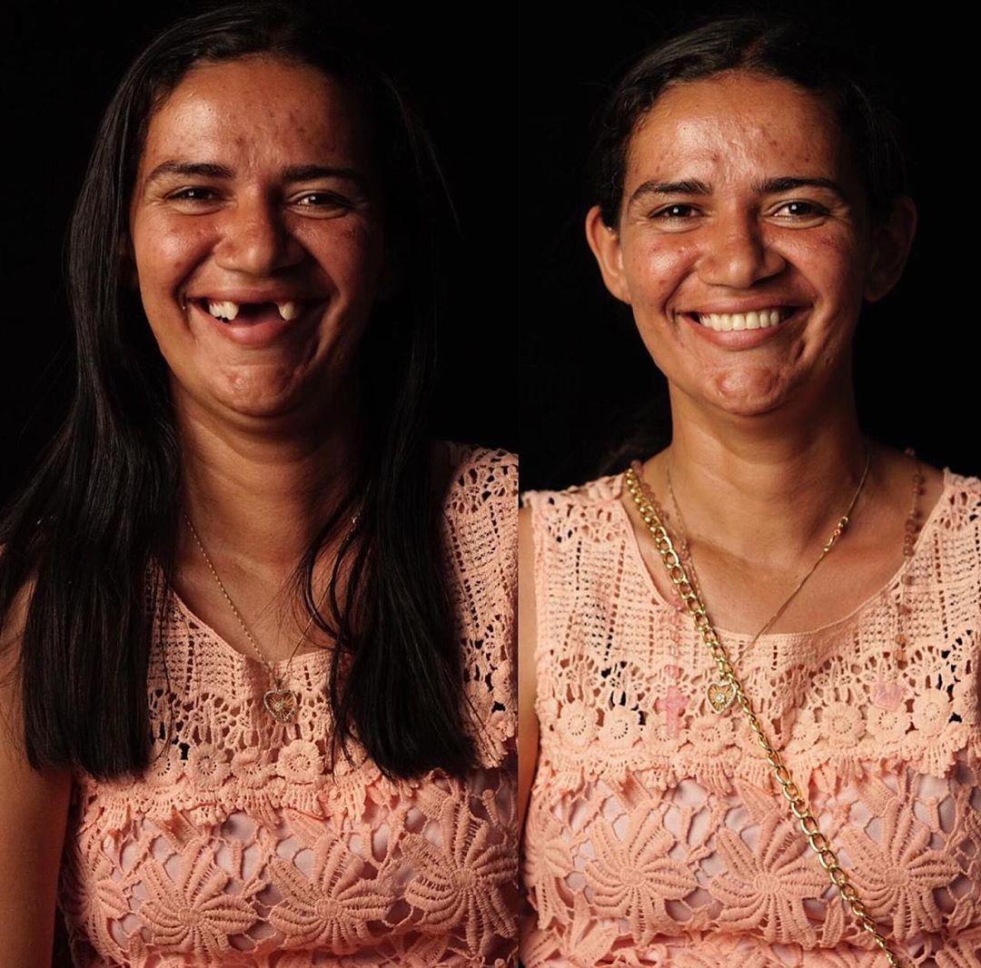 antes e depois de pessoa carente atendida por dentista brasileiro e sua ONG