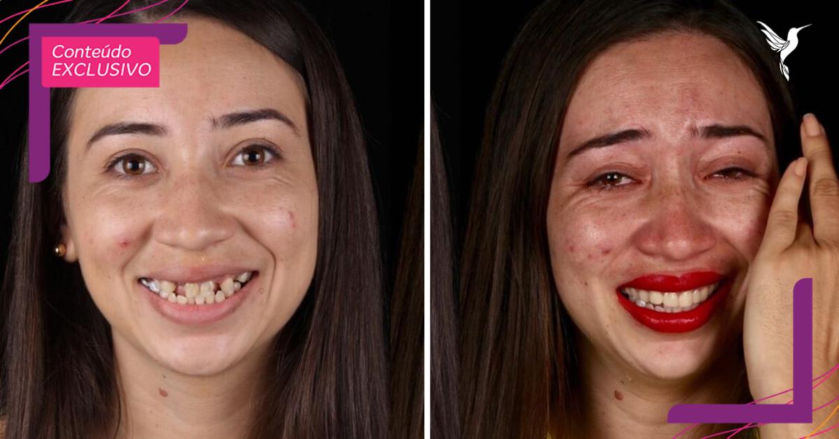 antes e depois de pessoa atendida por dentista brasileiro que atende gratuitamente
