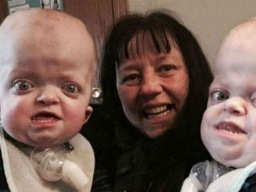 Enfermeira adota bebês gêmeos com doença genética abandonados em hospital 2