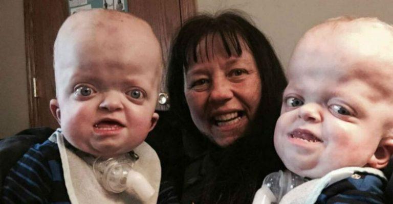 Enfermeira adota bebês gêmeos com doença genética abandonados em hospital 1