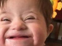 bebê com Down sorri para mãe adotiva