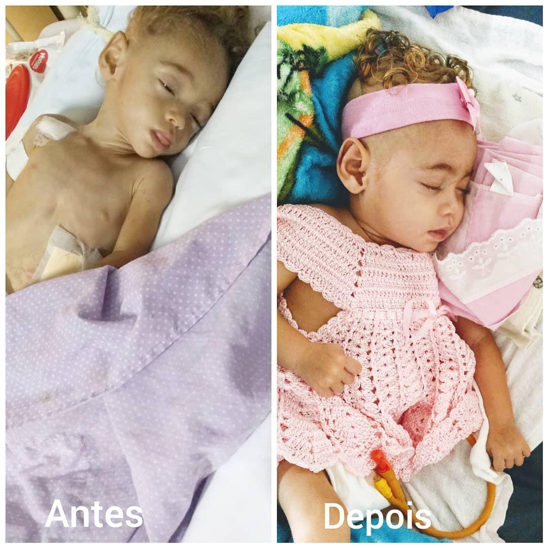 antes e depois de bebê abandonada em hospital