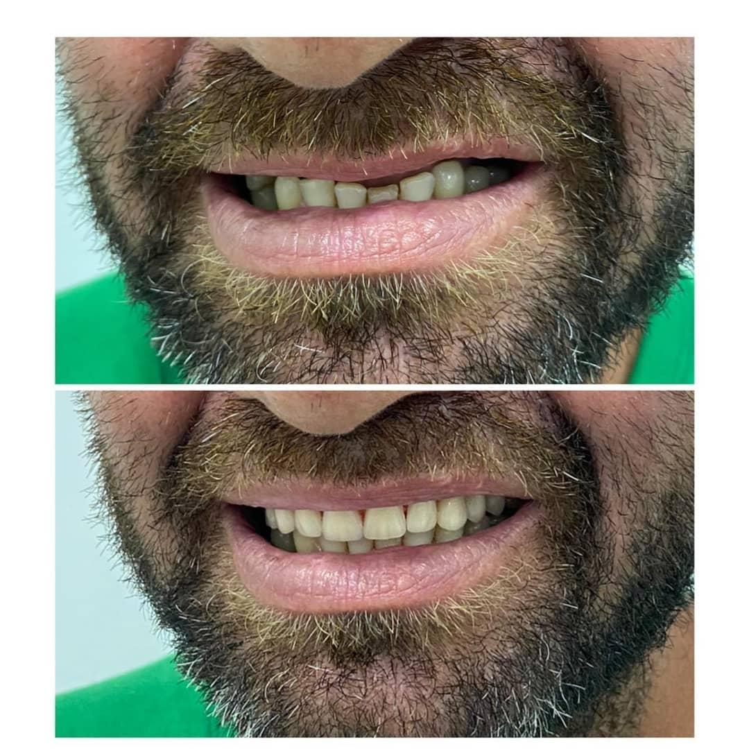 morador de rua que prestou Enem com sorriso novo após tratamento odontológico