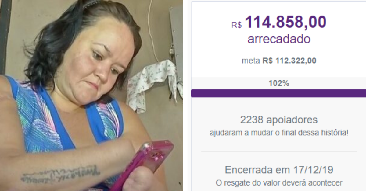 Com apoio de internautas, mulher que teve as mãos decepadas pelo ex-marido consegue próteses