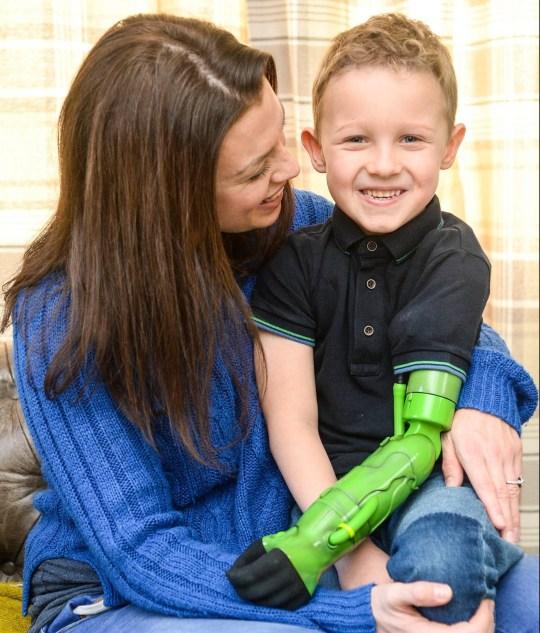 menino ganha braço protético abraça irmão