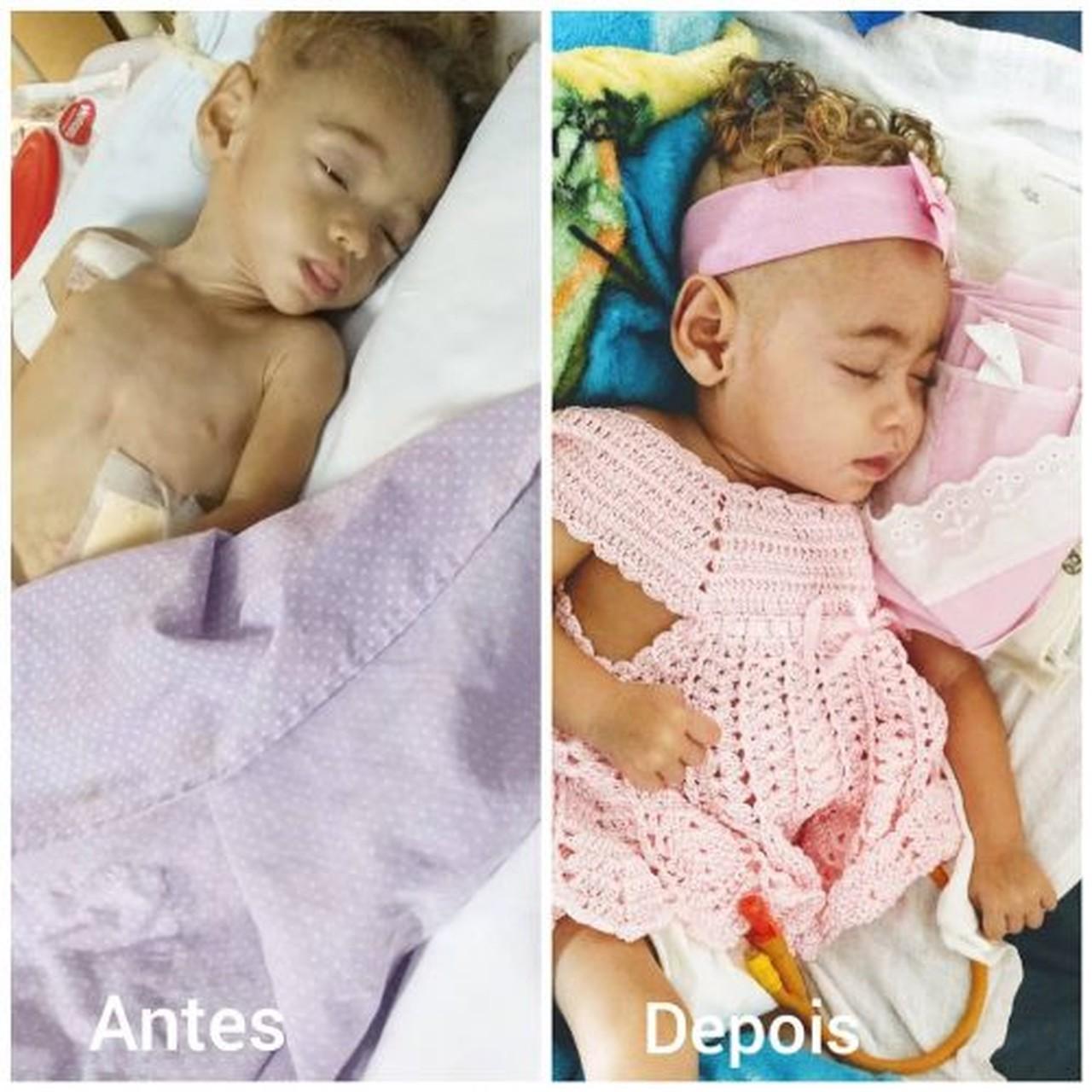 antes e depois de bebê que sofria maus-tratos