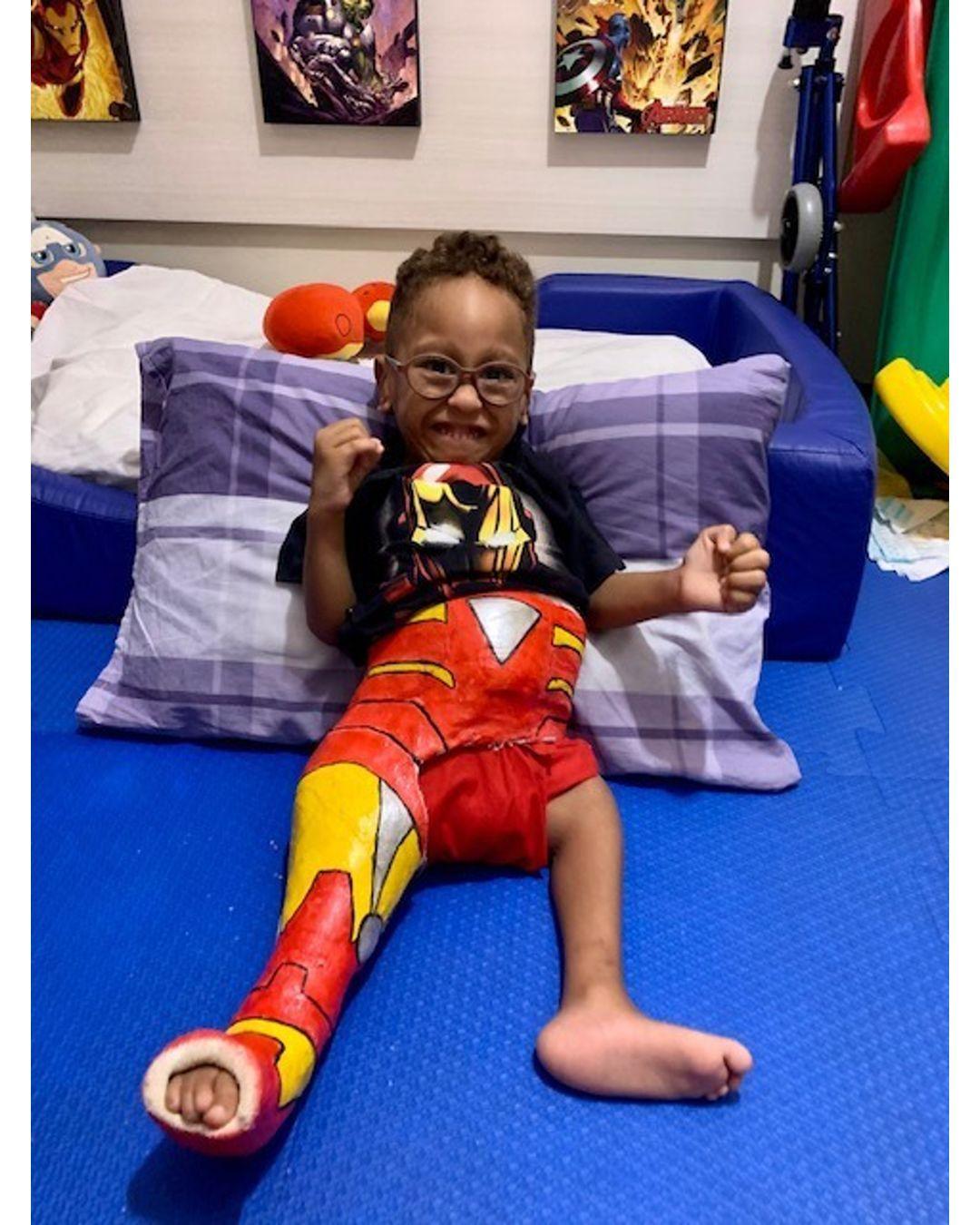 pais gesso filho sindrome rara recuperação