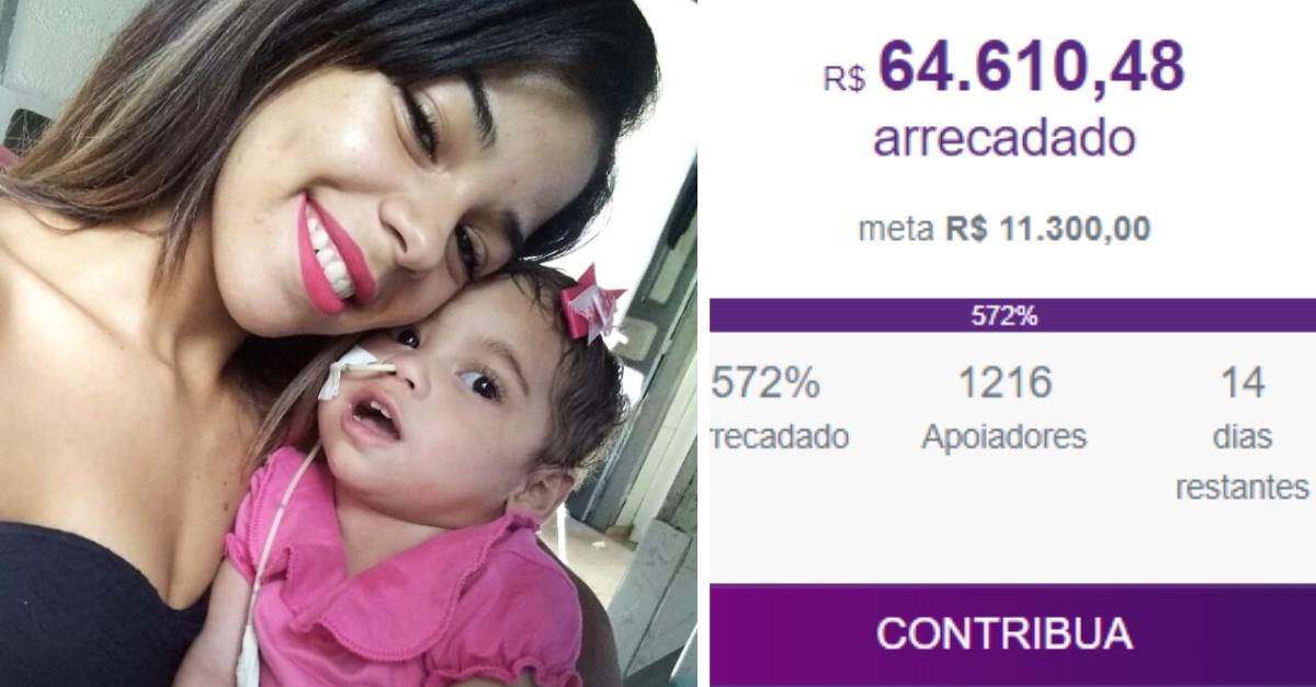 Vaquinha para bebê adotada por sofrer maus-tratos arrecada mais de R$ 60 mil 1