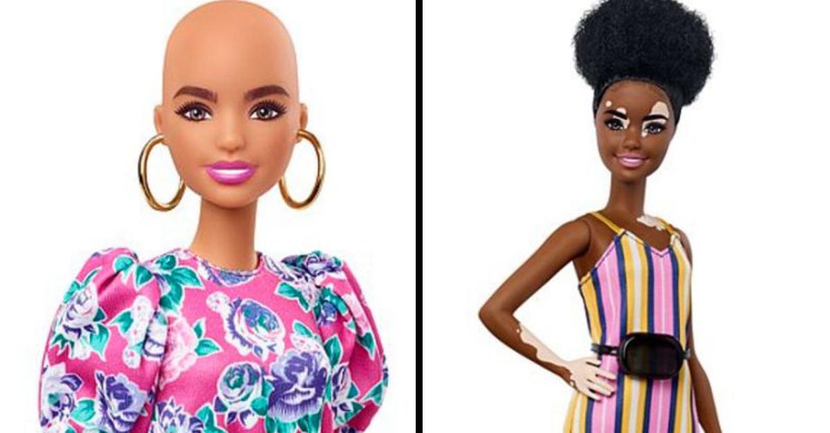 Mattel lança linha de bonecas Barbie com vitiligo e sem cabelo 1
