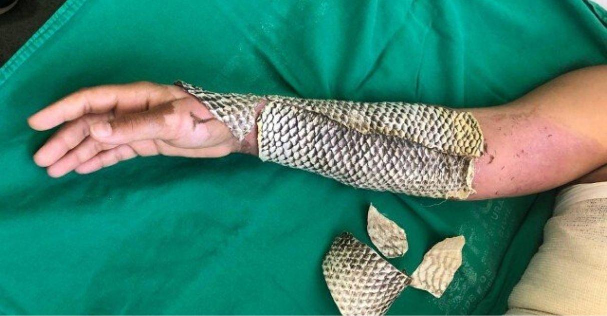 Hospital do Rio usa pele de tilápia para tratamento de queimaduras 1