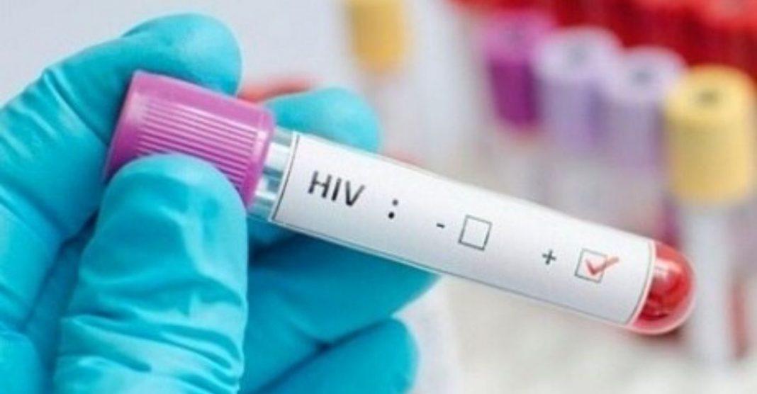 Pesquisa descobre como eliminar HIV do corpo