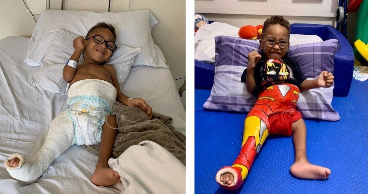 Pais pintam gesso de filho com síndrome rara para tornar mais leve recuperação 1