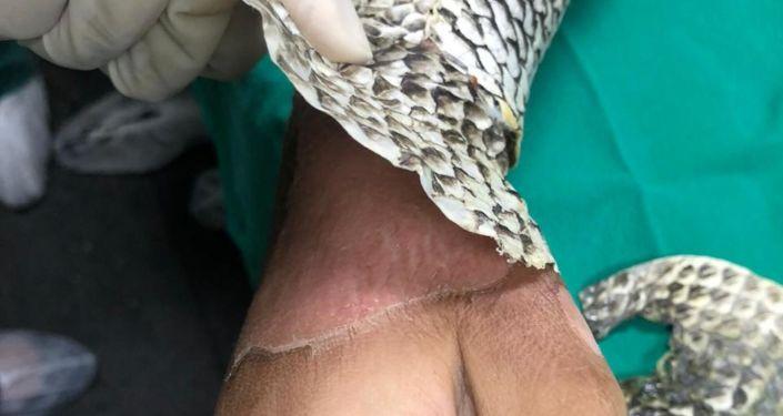 hospital usa pele de tilápia tratamento queimaduras