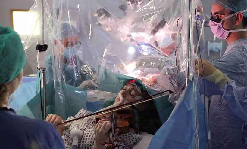 Paciente toca violino durante cirurgia retirada tumor cérebro