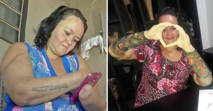 Com vaquinha, mulher que teve mãos decepadas pelo ex-marido ganha próteses