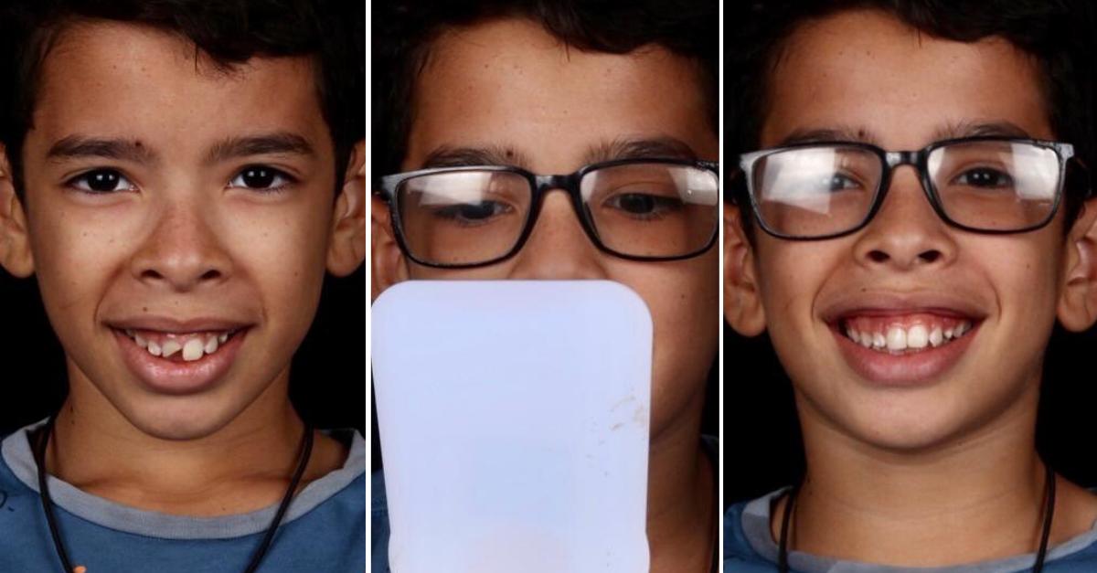 menino olhando dentes novos feito por dentista reconhecido mundialmente