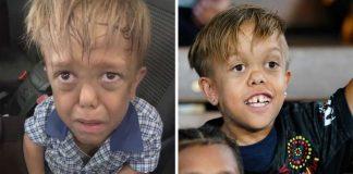 Menino nanismo vítima bullying recebe aplausos partida austrália