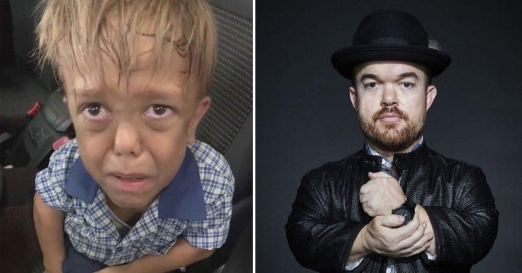 Comediante arrecada quase R$ 1 milhão para menino que sofreu bullying 3