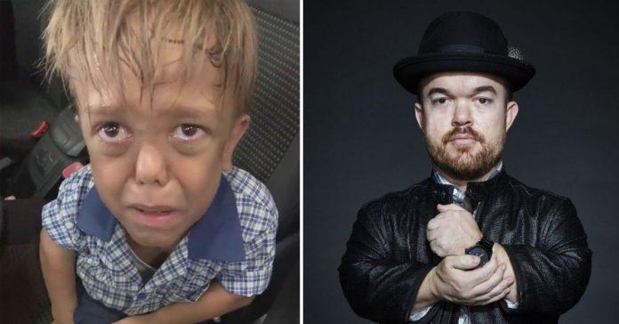Comediante arrecada quase R$ 1 milhão para menino que sofreu bullying 1