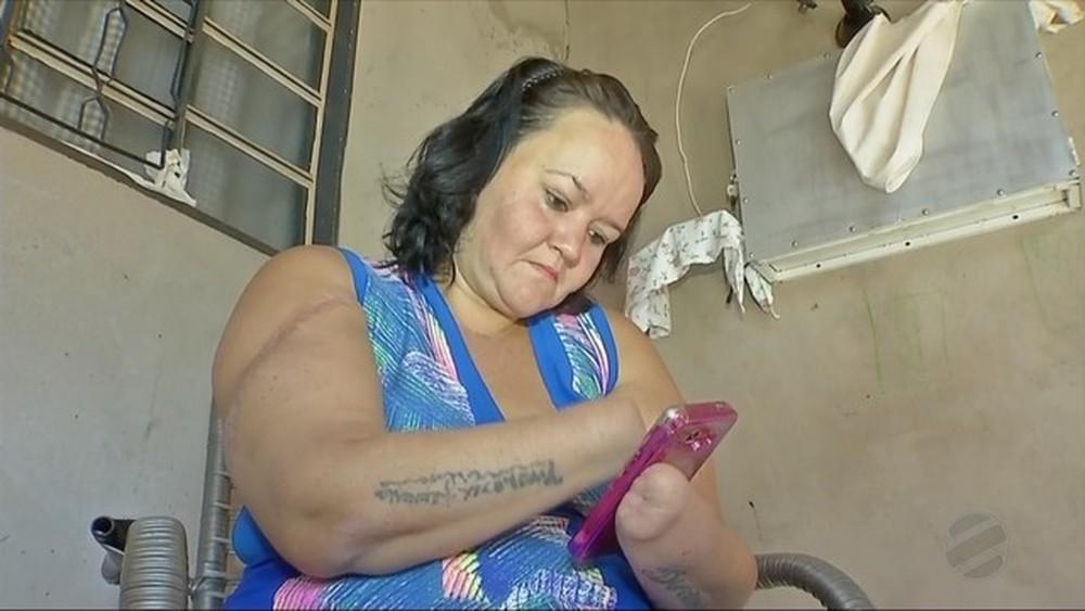 mulher que teve as mãos decepadas pelo ex-marido mexendo no celular