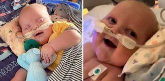 bebê sorri pela primeira após cirurgia coração