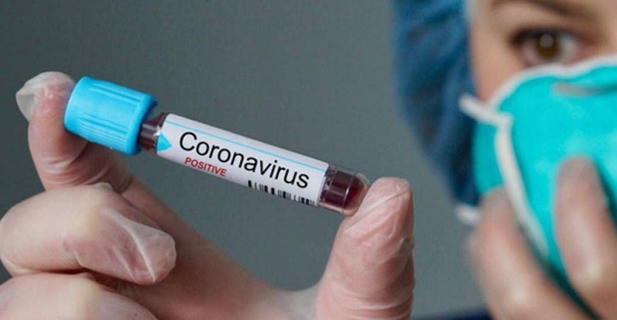 Pesquisadores brasileiros estão desenvolvendo vacina contra o coronavírus 1