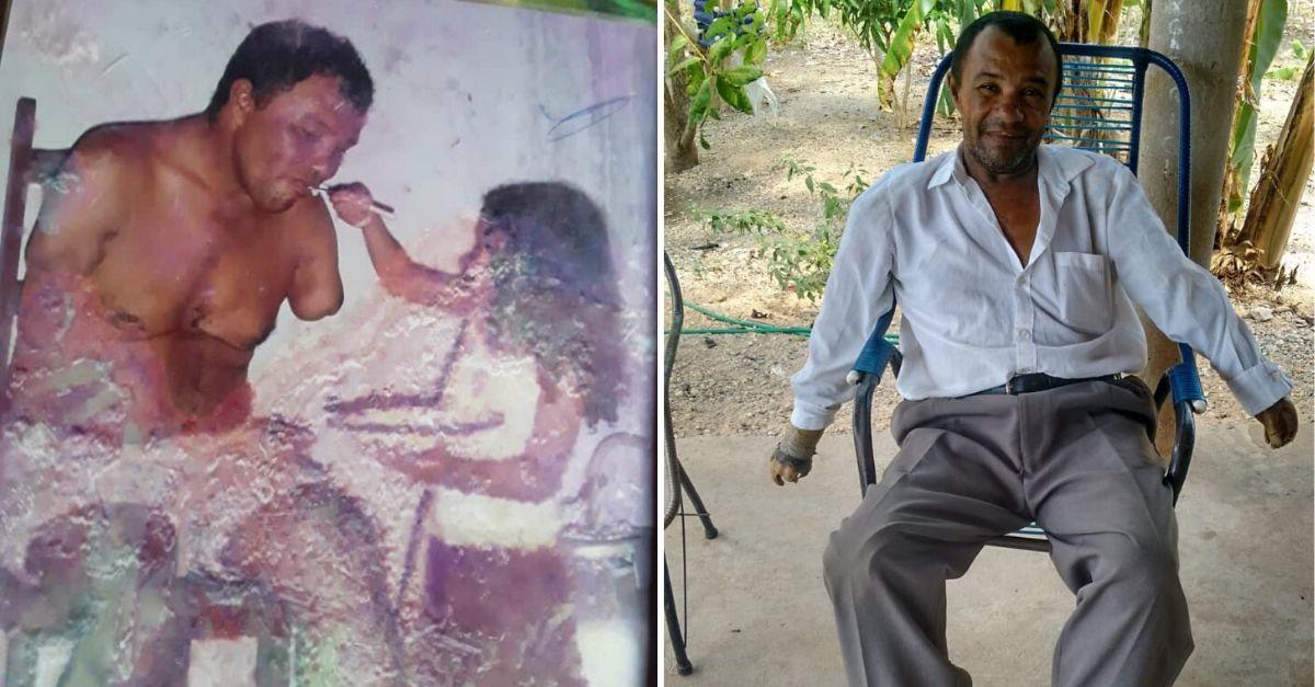 Internautas criam vaquinha para idoso que perdeu os braços em acidente e sonha ter suas próteses 1